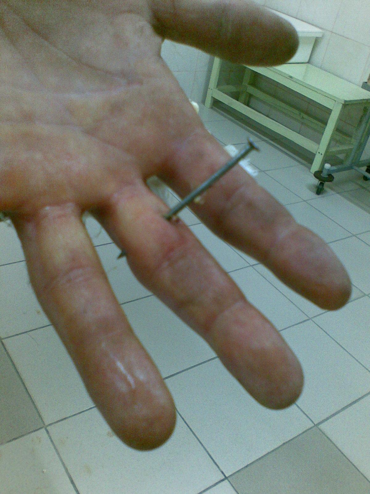 Как сделать гвоздь в пальце своими руками 98